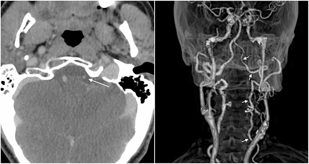 Computed-tomography-(CT)-angiogram