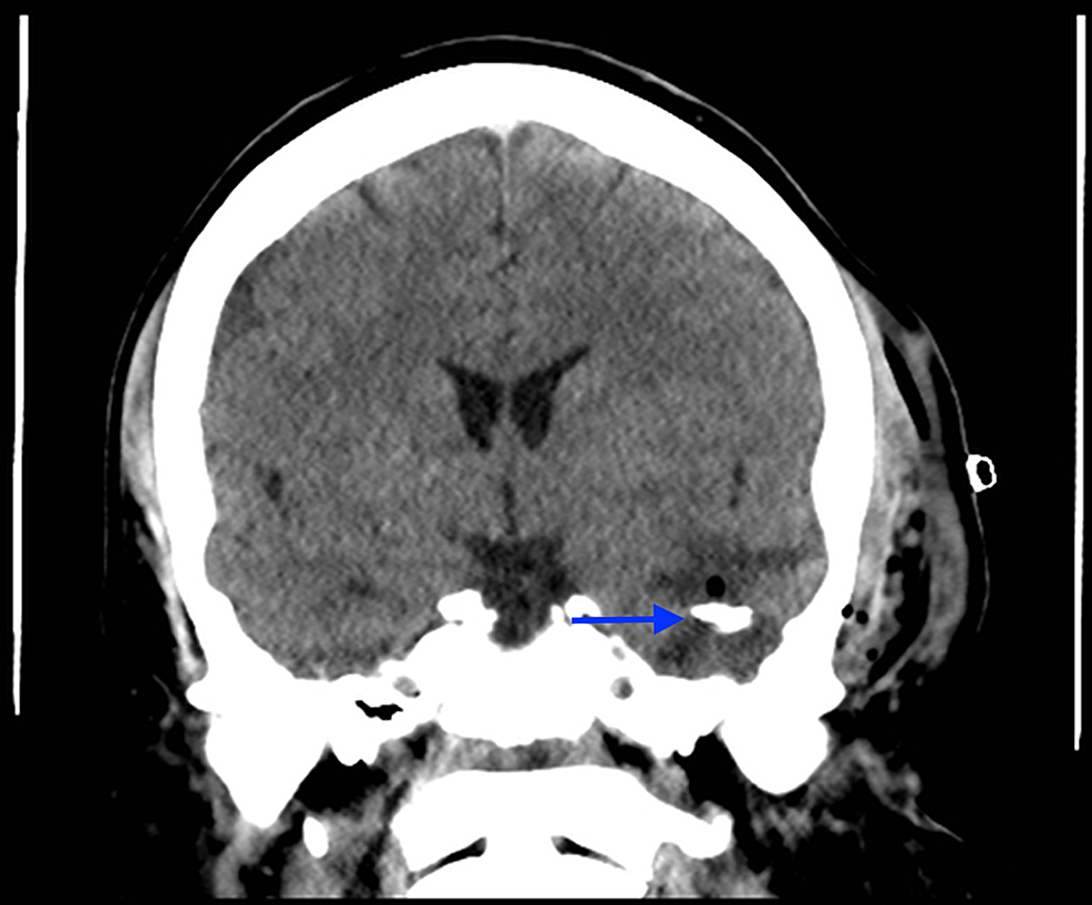 Postoperative-unenhanced-coronal-CT-of-the-head:-shunt-tubing-(blue-arrow)-sitting-in-previous-cystic-cavity,-which-is-now-collapsed-around-the-tube.