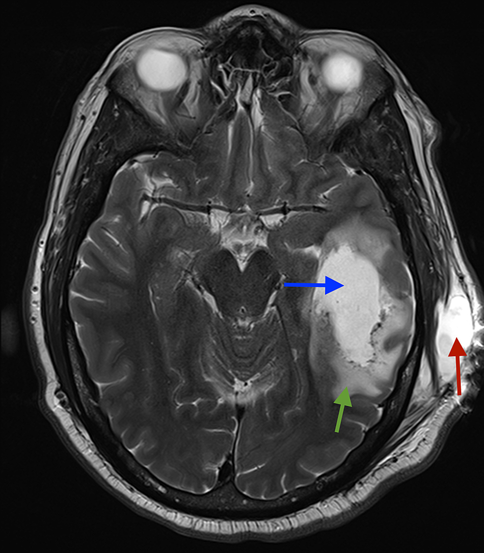 Axial-unenhanced-T2-MRI-of-the-brain:-lucency-in-temporal-lobe-(blue-arrow)-and-associated-surrounding-oedema-(green-arrow),-pseudomeningocoele-(red-arrow)-in-subcutaneous-tissues-on-the-left-side.