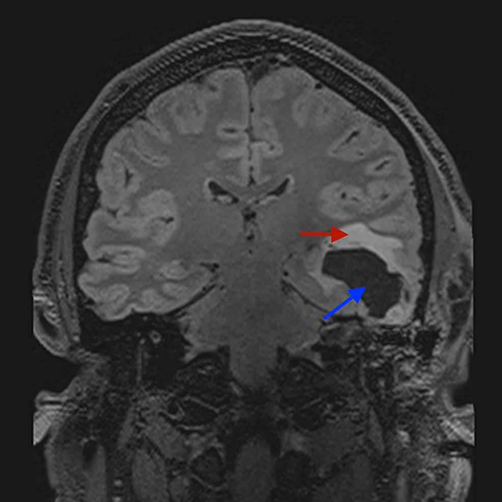 Coronal-unenhanced-T2-fat-suppressed-MRI-of-the-brain:-lucency-in-the-temporal-lobe-(blue-arrow)-and-associated-surrounding-oedema-(red-arrow).