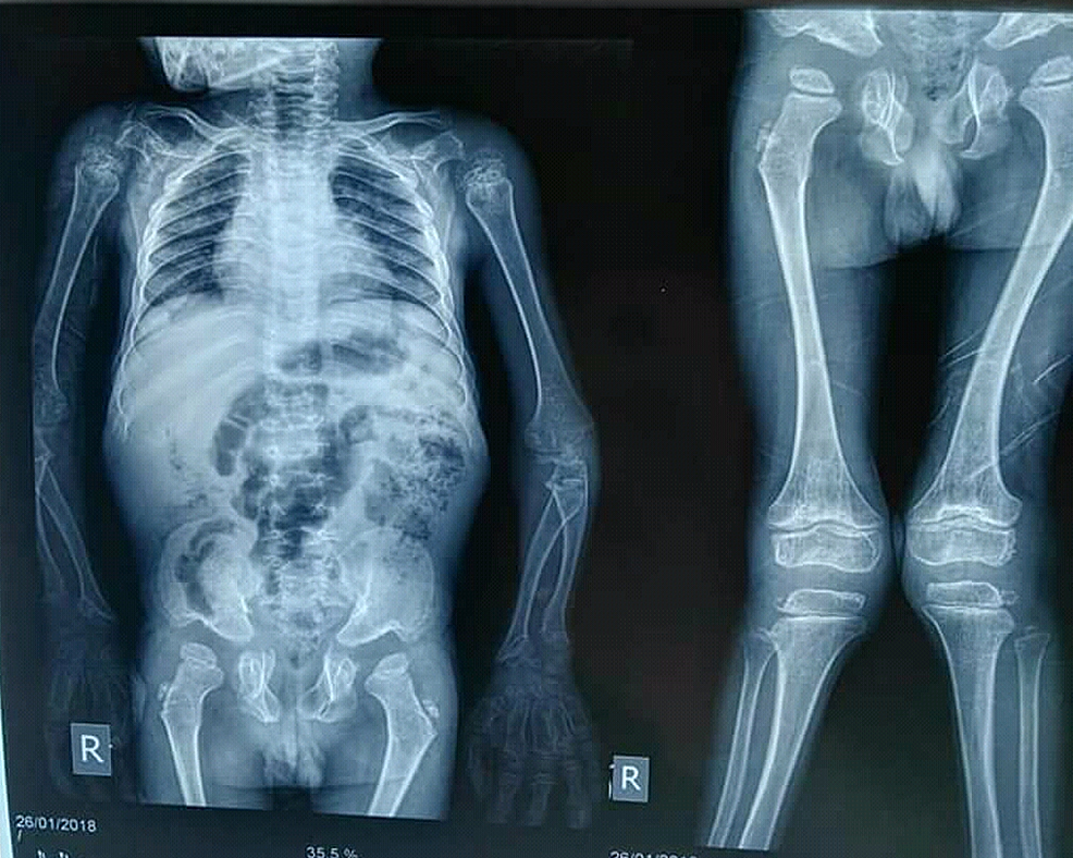 X-ray-showed-genu-valgum-in-lower-extremities-with-bowing-of-lower-legs.-No-scoliosis-was-observed.