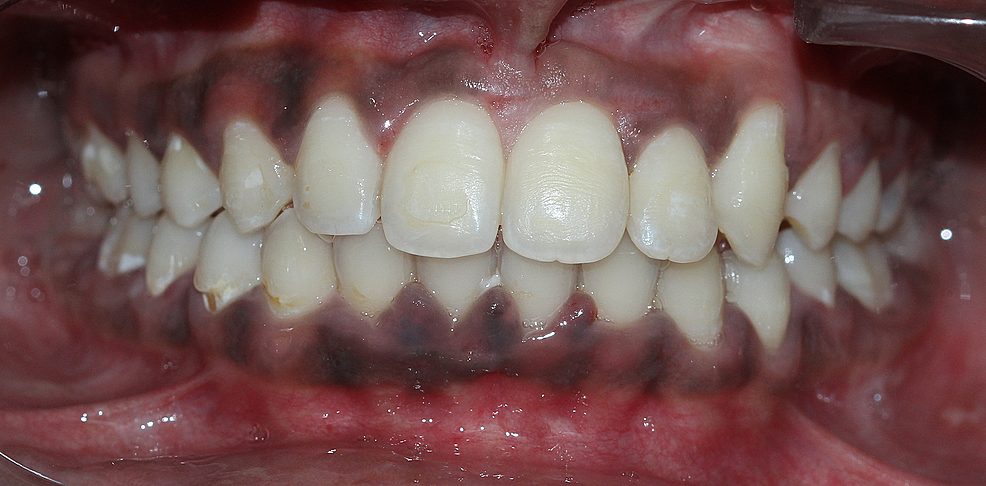 Completely-aligned-permanent-dentition
