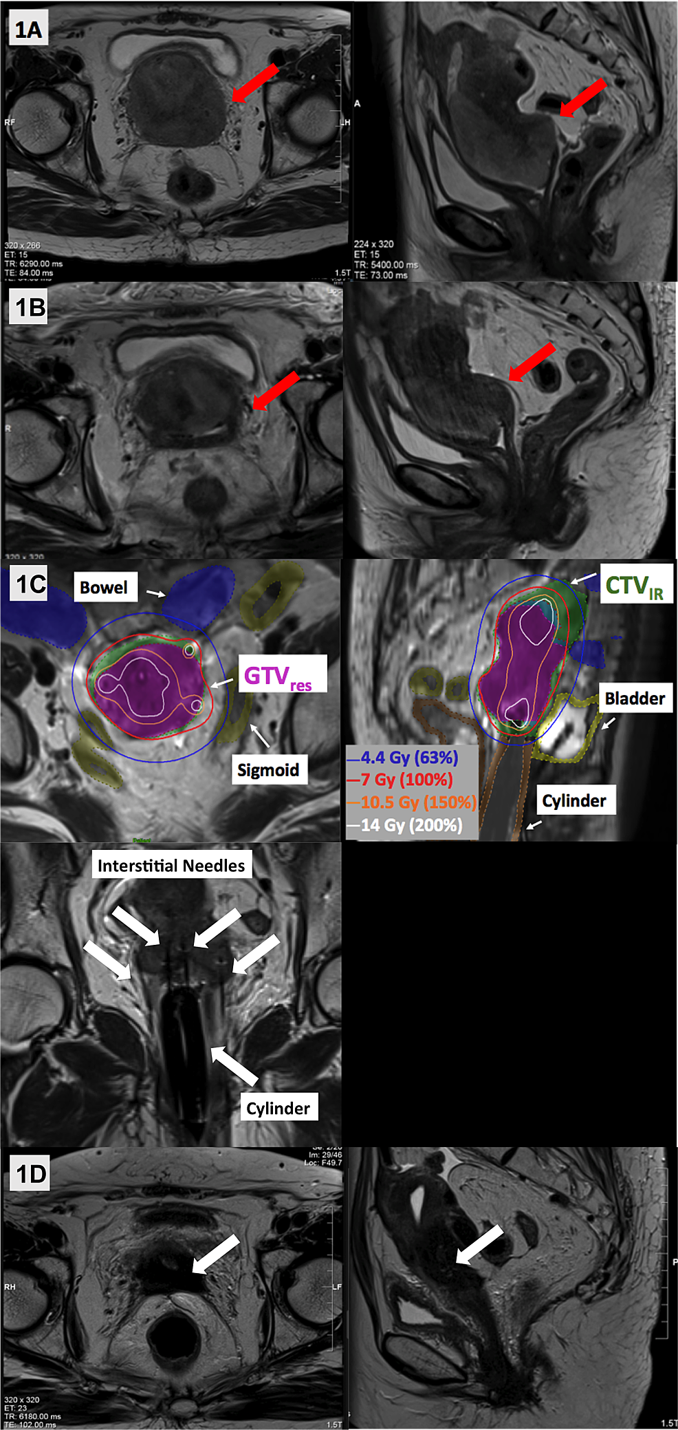 Representative-T2-weighted-axial-and-sagittal-images-acquired-across-Patient-A's-treatment-course.-(A)-Pre-treatment-MRI-showed-a-large-uterine-mass-involving-the-cervix,-vagina-and-left-parametria-(red-arrows).-(B)-MRI-following-external-beam-radiotherapy-showed-a-good-response-with-reduction-in-the-size-of-the-mass,-but-persistent-parametrial-involvement-rendering-it-still-unresectable-(red-arrows).-(C)-MR-guided-brachytherapy-was-delivered-using-a-template,-intra-vaginal-cylinder-and-12-interstitial-needles,-with-good-dosimetric-coverage-of-the-residual-GTV-(GTVres:-solid-magenta),-high-risk-CTV-(CTVHR:-overlaps-with-GTVres)-and-intermediate-risk-CTV-(CTVIR:-solid-green).-(D)-MRI-at-14-months-post-brachytherapy-showed-a-complete-response,-with-fibrosis-and-no-residual-tumor-(white-arrows).-