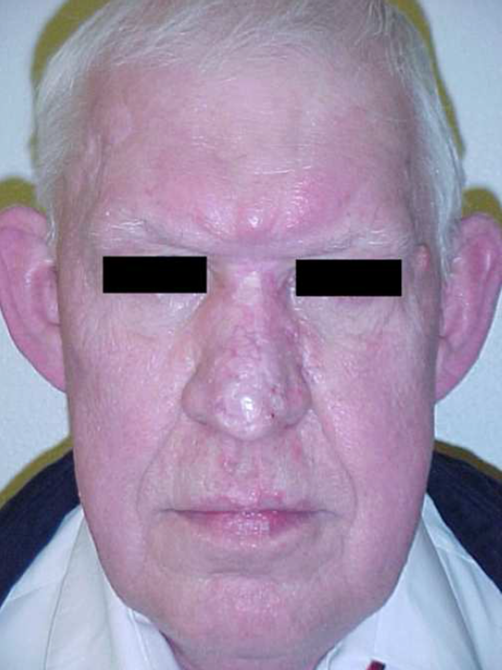 Frontal-postoperative-appearance