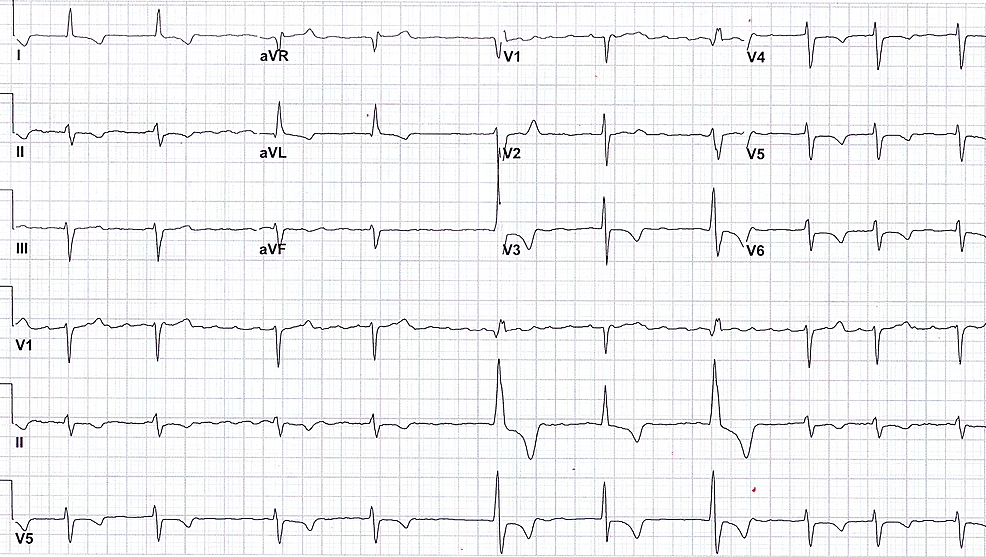 Electrocardiogram-on-admission