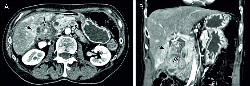 Abdominal-imaging-findings