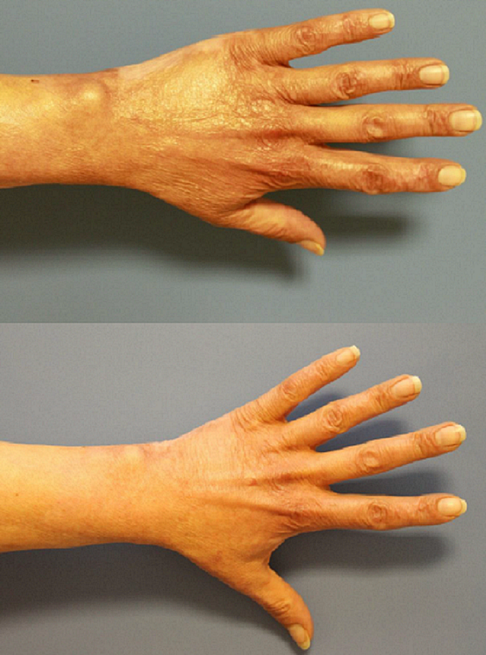 Patient-1,-dorsal-left-hand,-preoperatively-(above)-and-one-year-postoperatively-after-needling-(below)