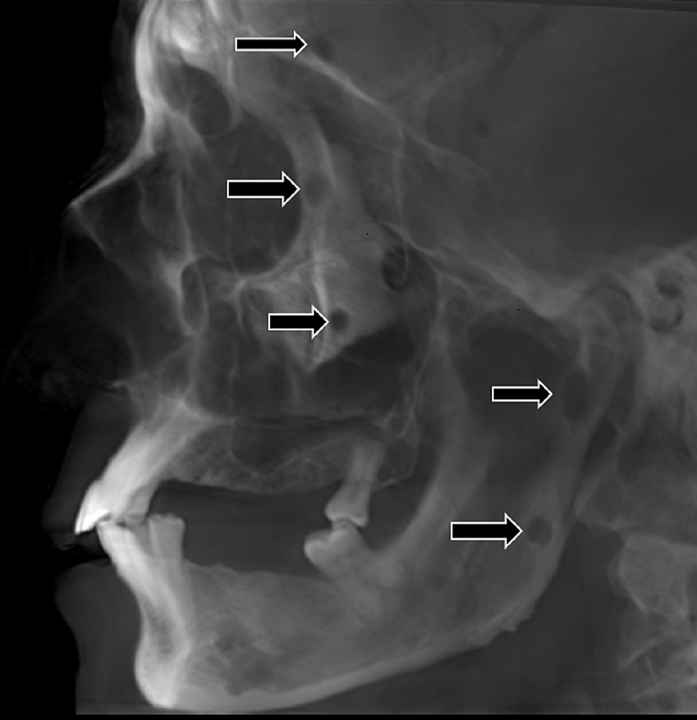 Lateral-cephalogram-demonstrating-multiple-punched-out-radiolucent-lesions-in-the-mandible-involving-the-ramus-and-condylar-regions.