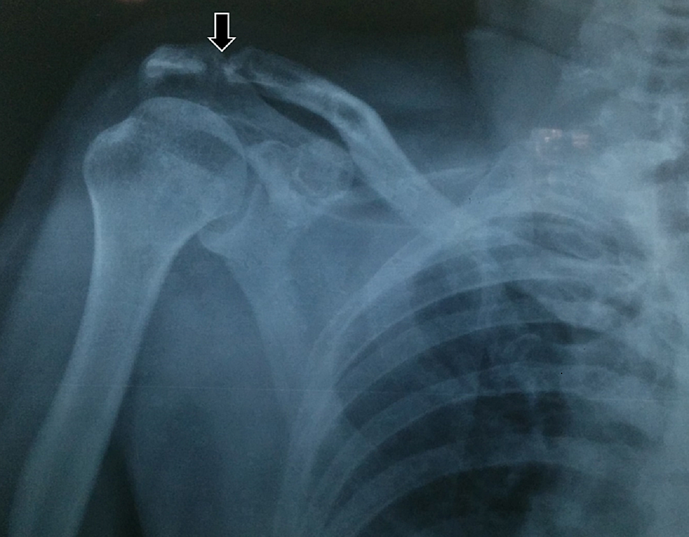 A-postero-anterior-shoulder-view-revealing-a-radiolucent-osteolytic-ill-defined-lesion-involving-the-acromioclavicular-joint,-suggestive-of-a-metastatic-lesion-secondary-to-the-primary-lesion-in-the-mandible.