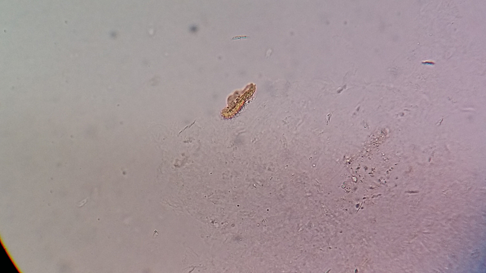 Larval-form-of-a-flea-after-it-hatched-out-of-an-egg