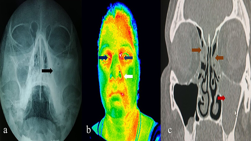 X-ray-nose-and-paranasal-sinuses-(a)-showing-haziness-in-the-left-maxillary-sinus-(black-arrow)-and-ethmoidal-regions.-Thermography-of-head-and-neck-(b)-showing-regions-of-hyperthermia-in-the-left-nasolabial-fold-(white-arrow)-and-bilateral-ethmoidal-regions-(blue-arrow)-suggestive-of-left-maxillary-and-bilateral-ethmoidal-sinusitis.-Computed-tomography-of-nose-and-paranasal-sinuses-(c)-showing-hyperdensity-in-left-maxillary-(red-arrow)-and-bilateral-ethmoidal-sinuses-(brown-arrow)