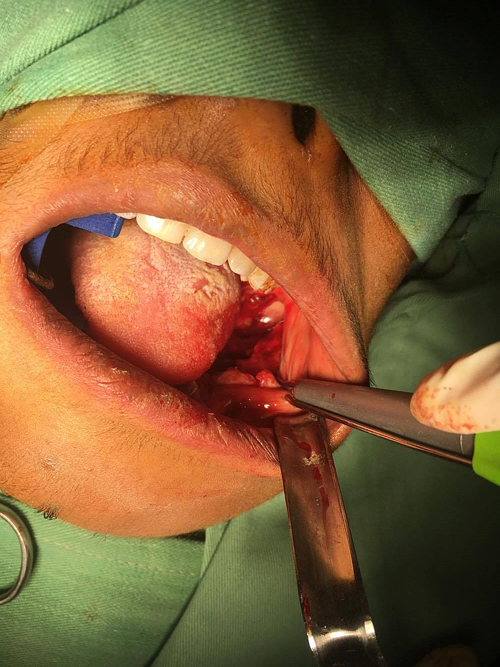 Clinical-picture-showing-the-exposure-of-the-lesion-through-the-extraction-sockets