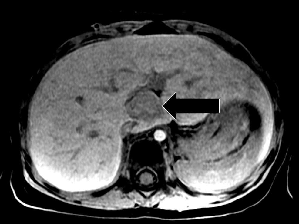 Axial-T1-weighted-Sequence-Obtained-after-Intravenous-Injection-of-Eovist