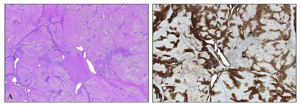 Focal-Nodular-Hyperplasia-(FNH)