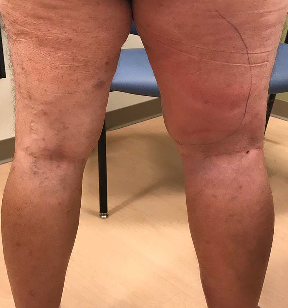 Compression-lymphadenopathy-mimicking-cellulitis
