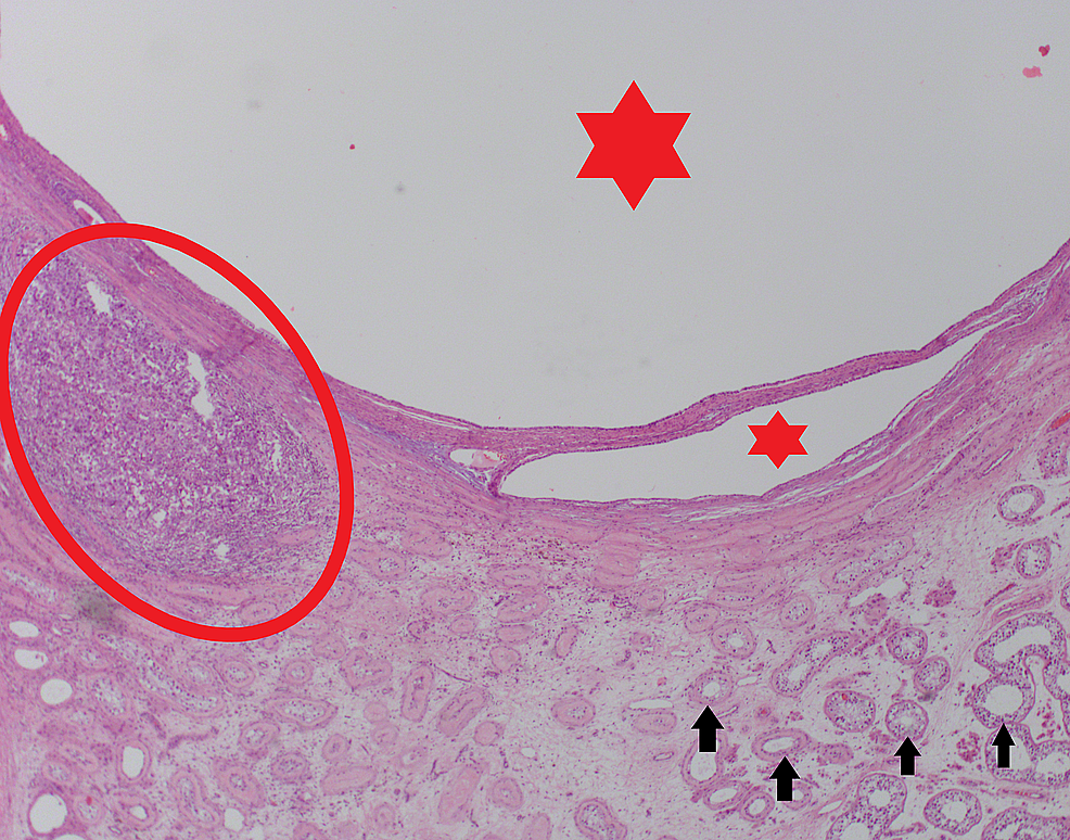 Cystic-lesions-(red-stars)-with-a-malignant-focus-located-inferiorly-(red-circle)