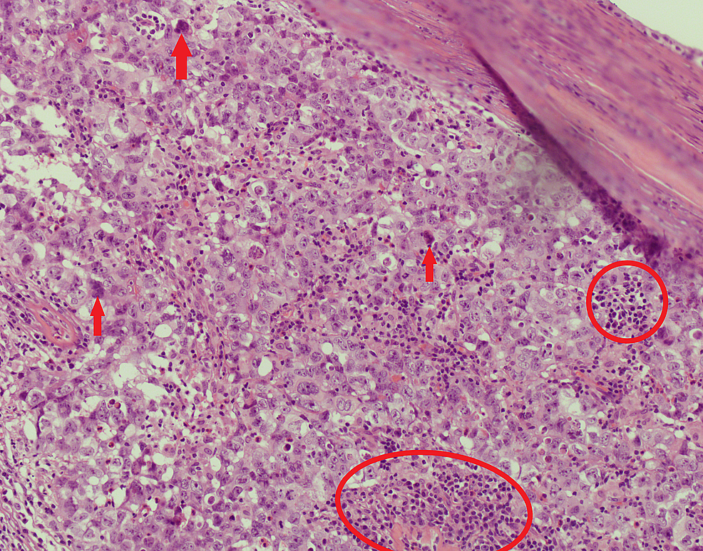 High-power-focus-of-the-malignant-lesion,-showing-abundant-nuclei-(red-circles)-and-prominent-nucleoli-(red-arrows),-with-granular-and-eosinophilic-cytoplasm