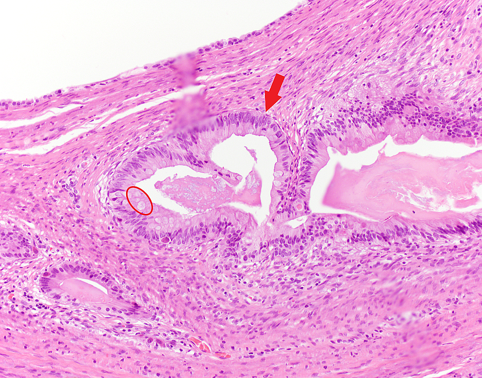 Cystic-lesion-lined-by-tall-columnar-epithelium-(red-arrow)-with-goblet-cells-(red-circle)