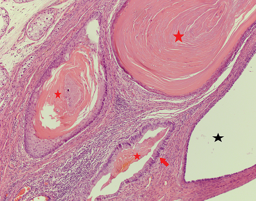 Concentric-keratinization-(red-stars)-confined-within-the-cystic-lesions,-lined-by-tall-columnar-epithelium-(red-arrow)