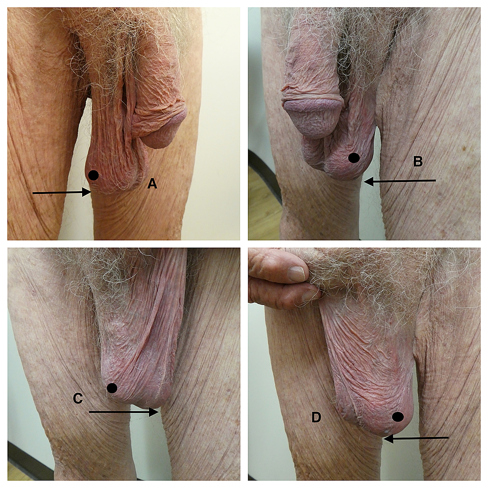 Scrotal-alopecia-and-scrotal-laxity-in-a-93-year-old-man