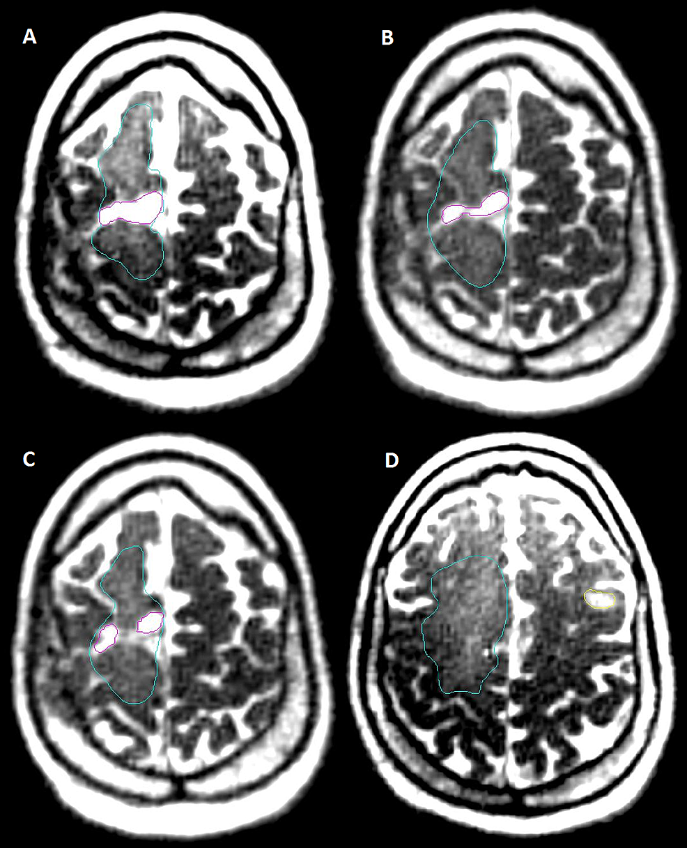 Patient-3:-Cavity,-Edema,-and-Secondary-Tumor-Simulation,-Fraction-1,-15,-30-Daily-Magnetic-Resonance-Imaging-(MRI)