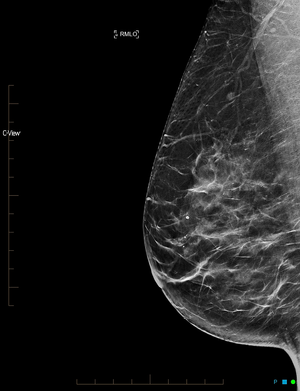 Cureus Large Non Enhancing Breast Cancer On Breast Magnetic Resonance Imaging A Case Report