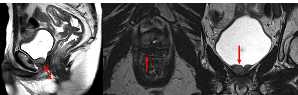 Diagnostic-Magnetic-Resonance-Imaging-of-a-Bulky-Recurrence