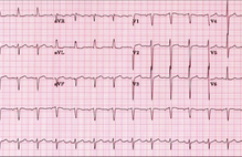 Article box fbc873801fc011e89d9f753e59065355 figure 1 ekg s patient