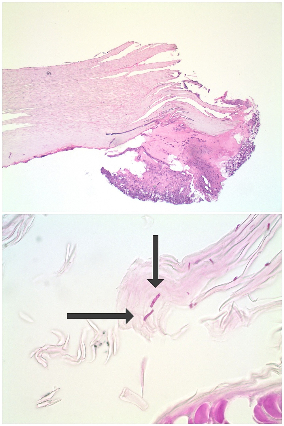 Onychomycosis-demonstrated-by-periodic-acid-Schiff-staining-of-fingernail-clippings.