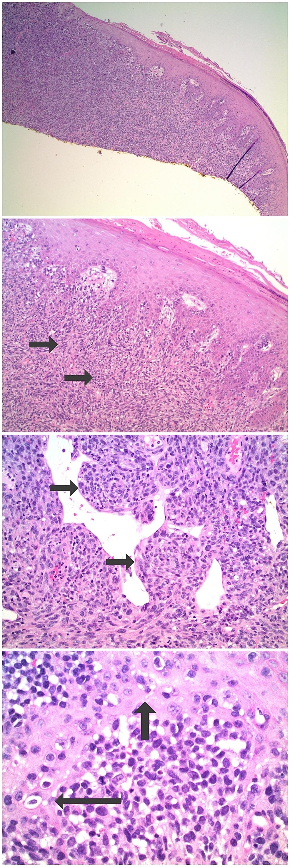 Microscopic-examination-of-the-hematoxylin-and-eosin-stained-nail-bed-biopsy-from-a-subungual-amelanotic-melanoma.