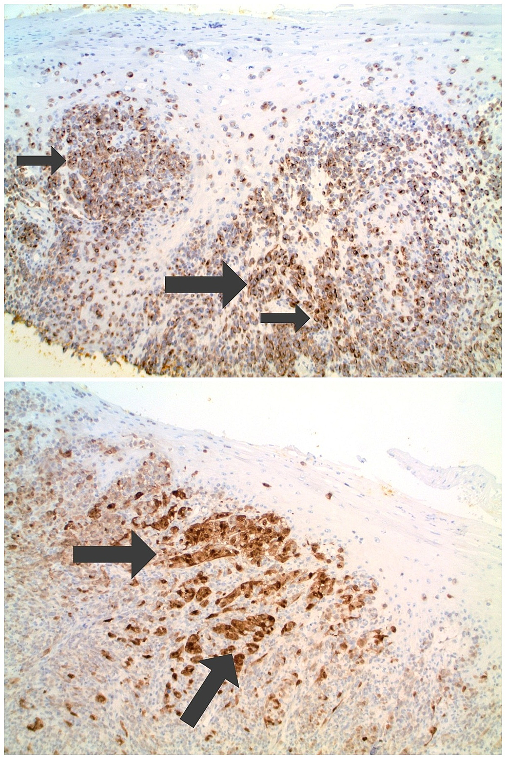 Microscopic-examination-of-the-melanoma-associated-antigen-recognized-by-T-cells-1-(MART-1)-and-S100-immunoperoxidase-stained-nail-bed-biopsy-from-a-subungual-amelanotic-melanoma.