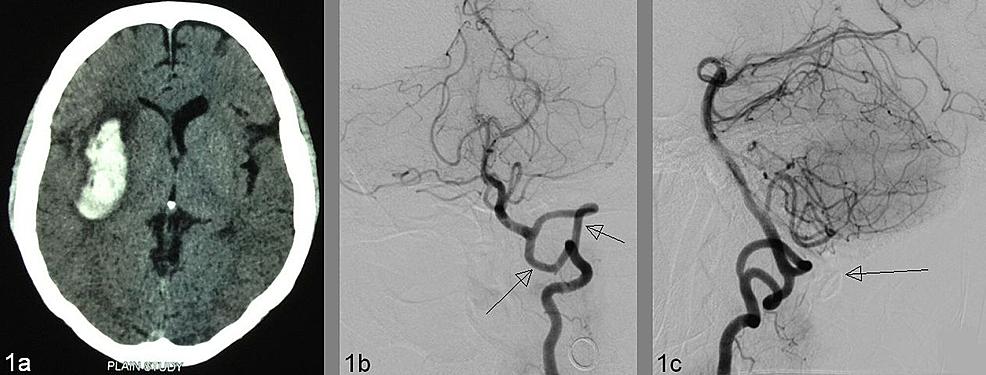 Cureus Unusual Finding Of Vertebral Artery Fenestration In