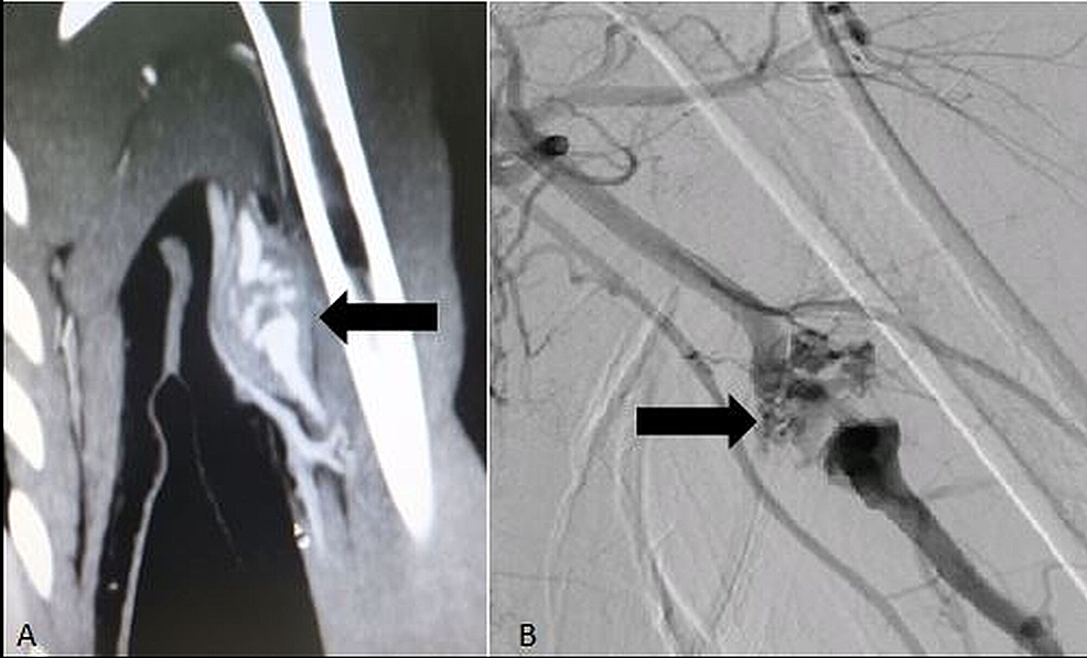 CT-scan-with-contrast-(A)-and-digital-subtraction-angiogram-(B)-of-an-18-year-old-patient-showing-multiple-tiny-outpouchings-(Arrows)-arising-from-the-brachial-artery