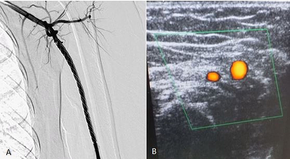 Post-procedure-angiogram-(A)-and-Doppler-ultrasound-(B)-showing-the-complete-exclusion-of-the-lesion