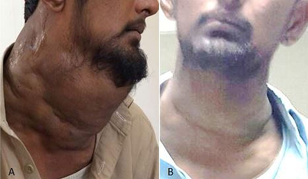 A.-Patient-presented-with-a-diffuse-neck-swelling.-B.-Marked-reduction-noted-in-the-neck-swelling-after-sclerotherapy-with-STS