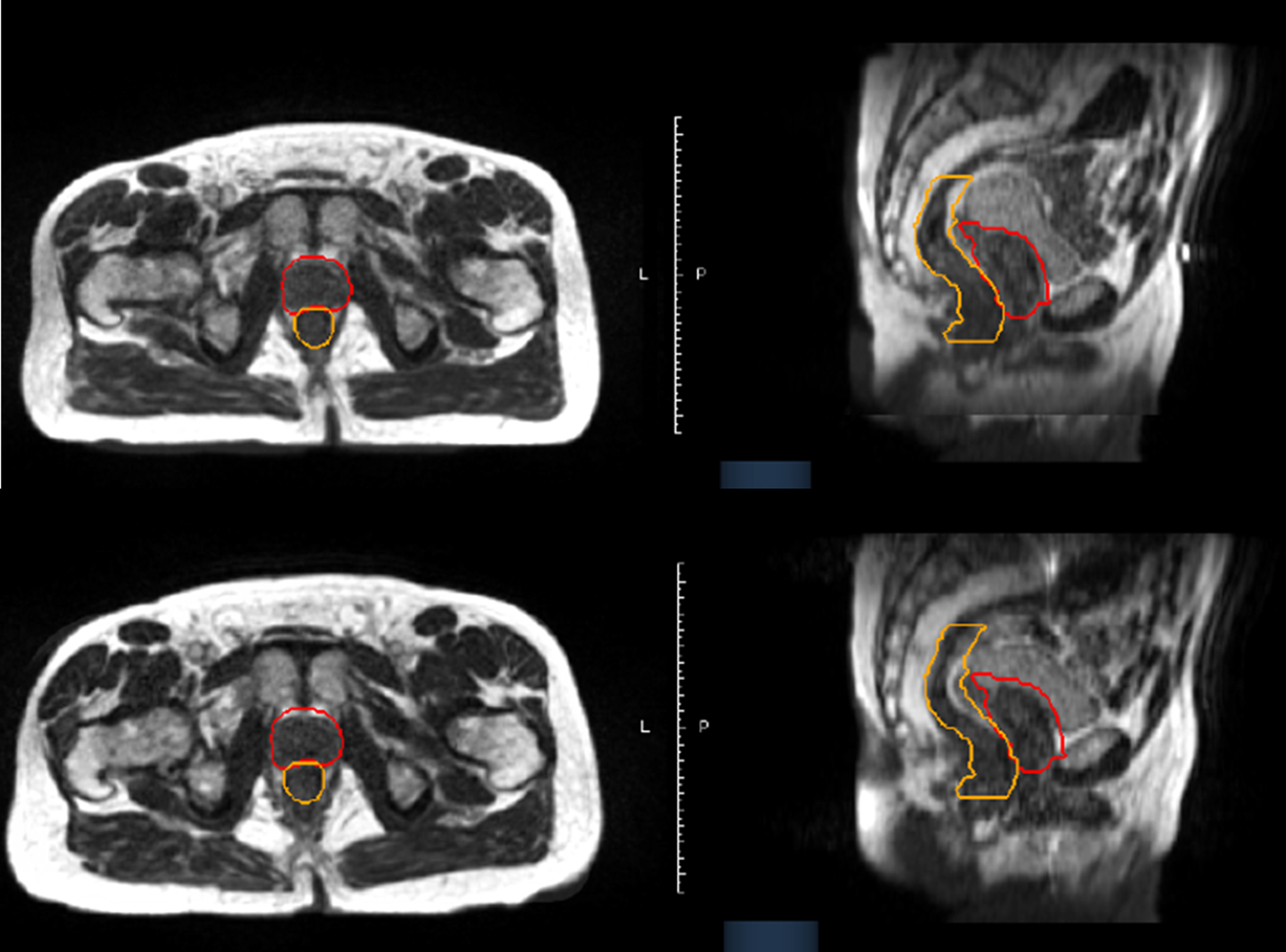 Cureus   Magnetic Resonance Imaging Guidance Mitigates the Effects ...