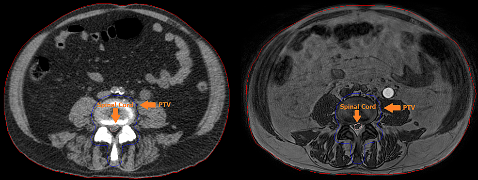 Pre-treatment-Computed-Tomography-(CT,-left)-and-online,-just-before-treatment,-Magnetic-Resonance-Image-(MRI,-right).-Visible-are-the-Planning-Target-Volume-(PTV,-blue),-spinal-cord-(pink)-and-body-(red).-Small-variations-between-the-delineations-can-be-observed.