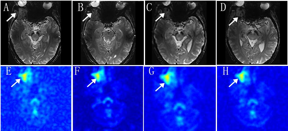 T2-weight-imaging-and-sodium-MRI.