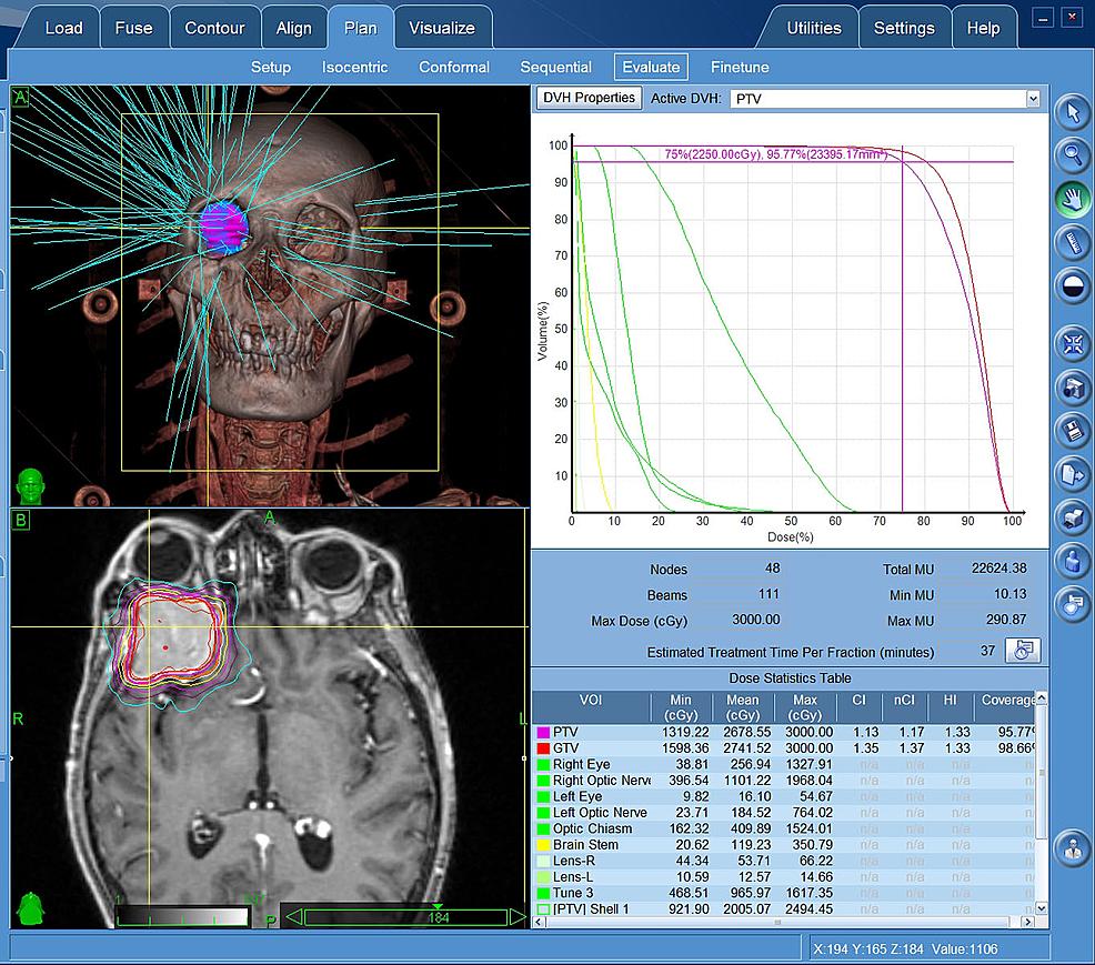 CyberKnife-radiosurgery-planing