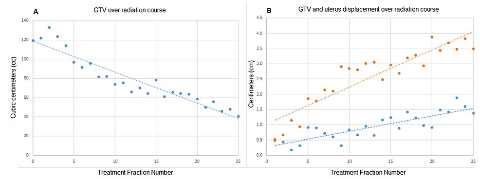 Gross-tumor-volume-(GTV)-and-displacement.