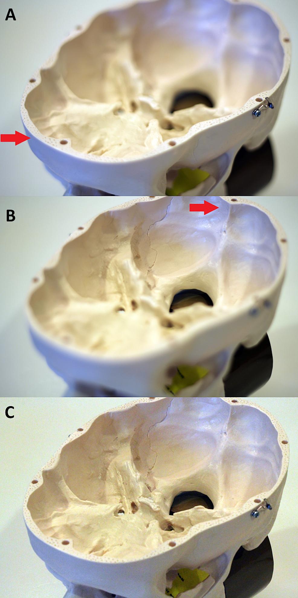 Skull-base-model-with-a-DSLR-camera