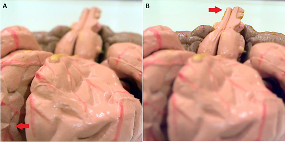 Brain-model-with-a-light-field-camera