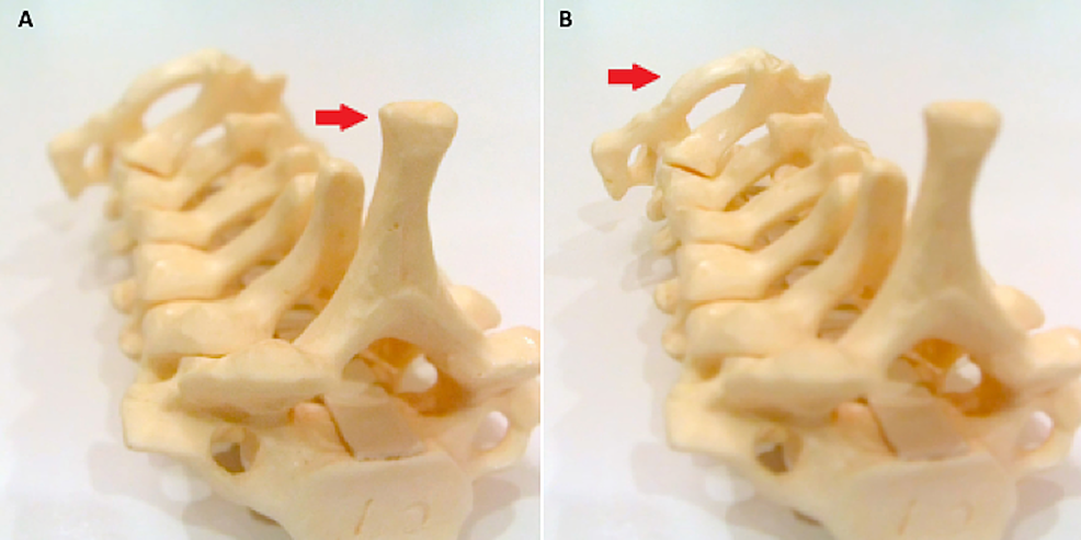 Cervical-spine-model-with-a-light-field-camera