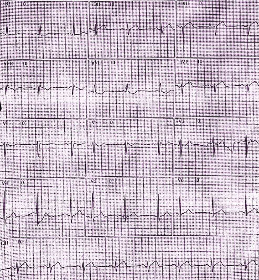 Electrocardiogram-(ECG)