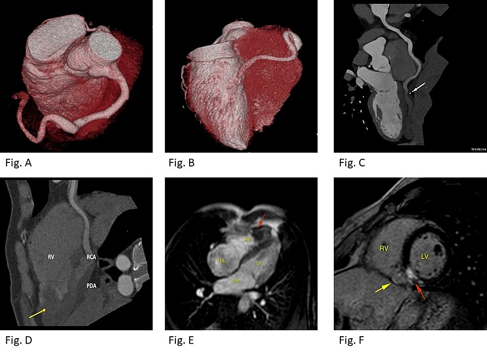Cardiac-computed-tomography-(CCT)