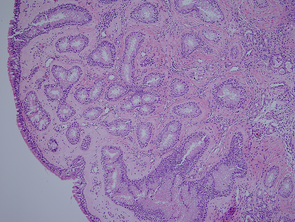 Histological-characteristics-of-REAH.-A-low-powered-photomicrograph-showing-small--to-medium-sized-glands-separated-by-stroma.