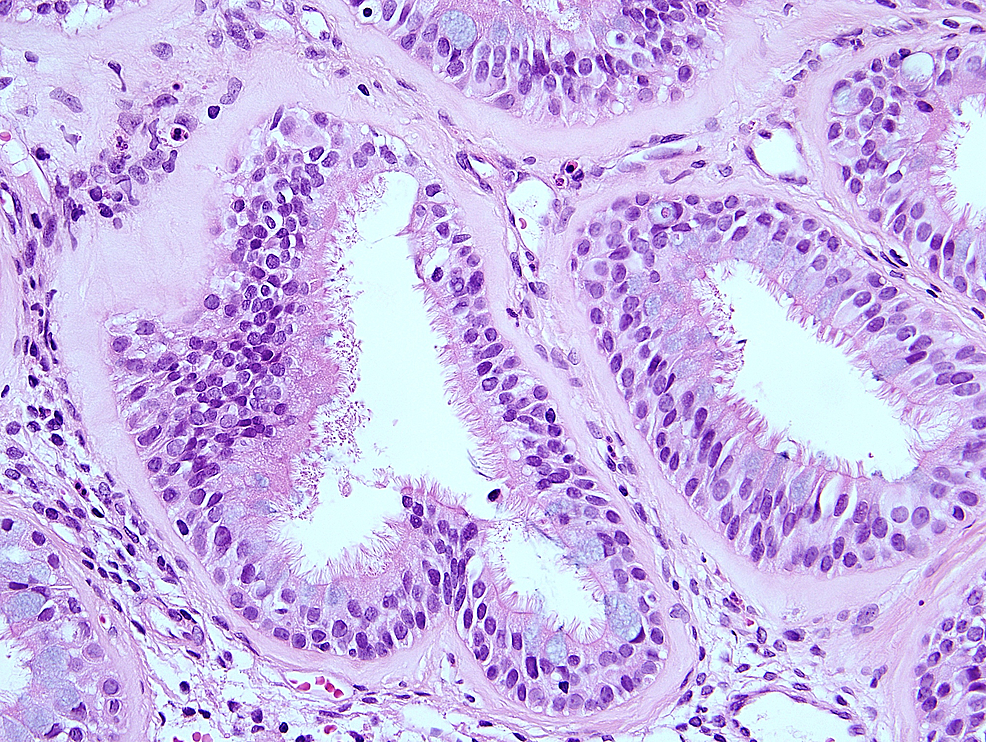 High-powered-photomicrograph-showing-multi-layered-ciliated-epithelium-with-hyaline-thickening-of-the-basement-membrane.