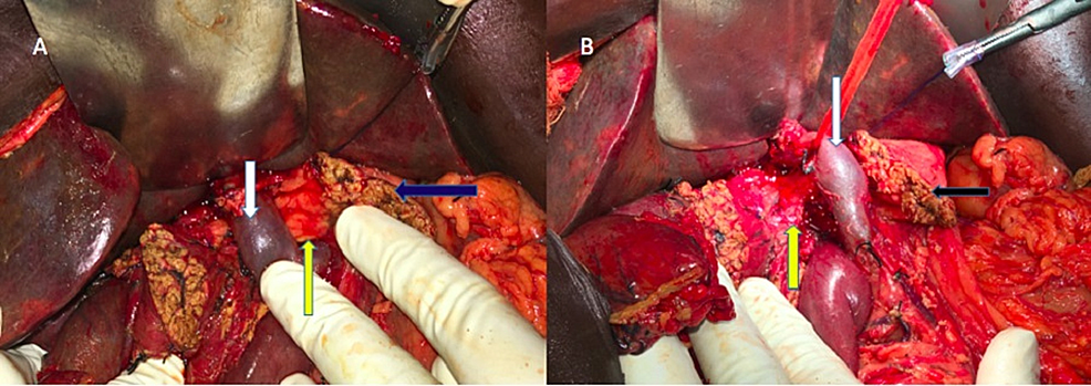 Operative-finding-after-transection-of-the-neck-of-pancreas-demonstrating-the-aberrant-pancreatic-tissue-(yellow-arrow)-posterior-to-portal-vein-(white-arrow).-The-anterior-pancreatic-stump-is-labelled-with-blue-arrow.