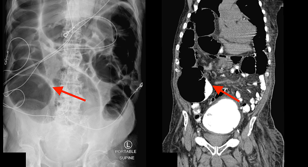 Abdominal-radiograph-and-computed-tomography-scan-(sagittal-view)-showing-colonic-pseudo-obstruction.