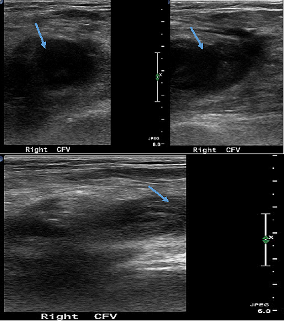 Doppler-study-showing-thrombosis-and-non-compressible-right-common-femoral-vein-(arrows)